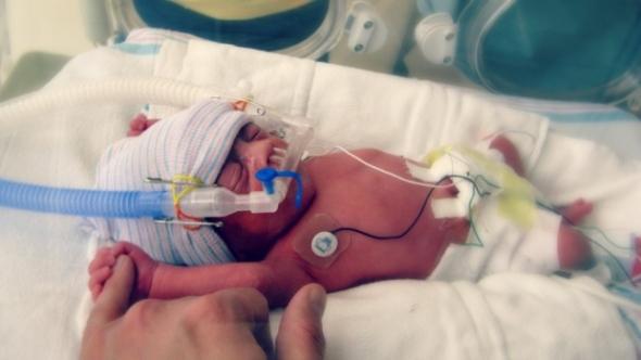 premature-babies